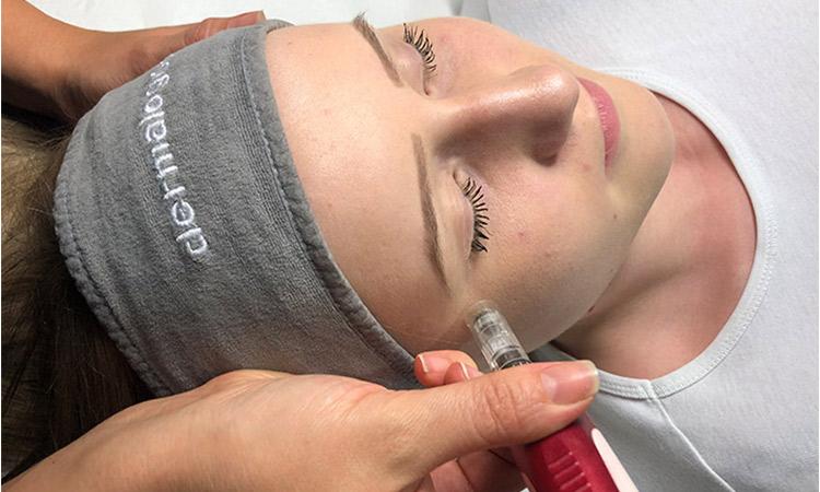 Dermapen – maknite ožiljke od akni, pigmentacijske fleke i raznih nepravilnosti na licu