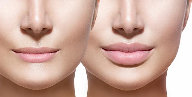 Povećajte elastičnost i volumen usana bez igle – Hyaluron pen