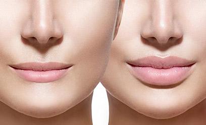 HYALURON PEN – popunjavanje usana ili bora lica bez igle